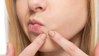 吹き出物に悩んでいる方必見!その原因と治し方・予防方法を紹介!